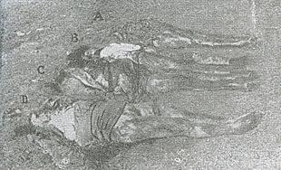 Accanto alla foiba di Terli vengono ricomposti i corpi di Albina Radecchi (A), Caterina Radecchi (B), Fosca Radecchi (C) e Amalia Ardossi (D)